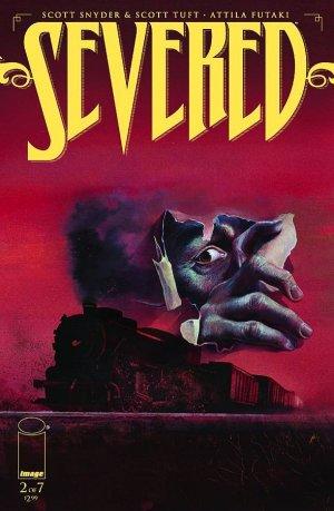 3782182-severed-2